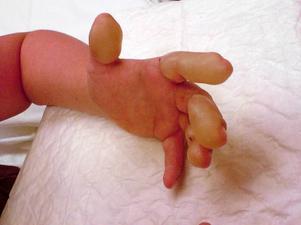 Zuzanna Powlowicz händer fick stora blåsor efter kontakten med jättebjörnlokan. Svullnaden och blåsorna gjorde att Zuzanna knappt kunde äta själv.  Foto: Privat