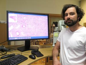 Det går snabbare och är säkrare att analysera prover på datorn än i mikroskop, tycker Gordan Maras, ST-läkare vid patologavdelningen på Gävle sjukhus.