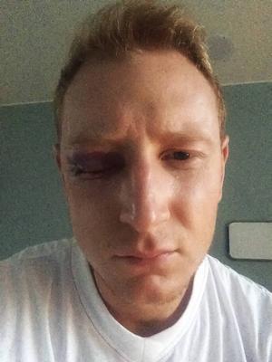Höger öga är totalt igenmurat på Oscar Gröhn efter klubban som träffade honom i ansiktet mot SAIK.
