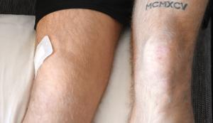 Johan Fahlströms högra knä är fortfarande för svullet för att genomgå en meningsfull magnetröntgen.