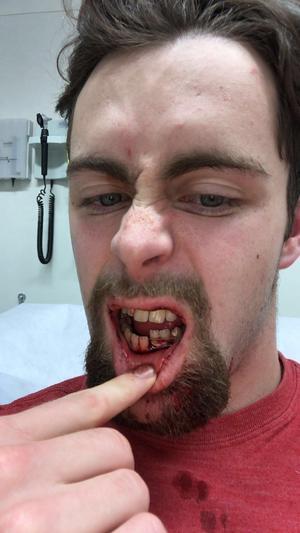 Oskar Svanlund visar upp sin skadade mun.