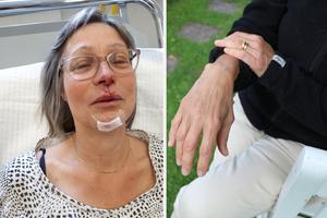 Berit fick sina skador omsedda på akuten efter olyckan. I en månad fick hon gå med handen i gips och hon är inte återställd ännu.