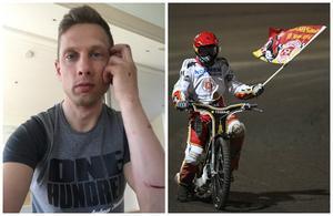Andreas Jonsson fastnade med armen i bakhjulet när han gick omkull i Målilla i förra veckan.