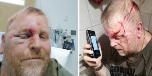 Stefan di Omnia fick skador både i ansiktet och på bakhuvudet.