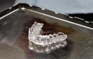 Foto: Anders Wiklund / ScanpixUnga kvinnor är de som gnisslar tänder mest. Allt fler unga kvinnor får bettskena. Oftast upptäcks problemen hos tandläkaren, som kan se på emaljen om patienten gnisslar tänder.