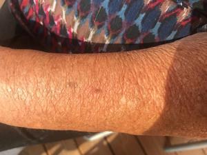 Britts märke efter ett hagel på armen. Foto: PRIVAT