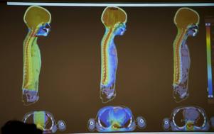 Bilderna visar skillnaden mellan vanliga typer av strålbehandling och protonstrålning (bilden längst till höger) där strålningen kan koncentreras till just hjärna och ryggrad – som är det man i detta fall vill behandla – medan ansiktet, hjärta, lungor och andra viktiga organ skonas.