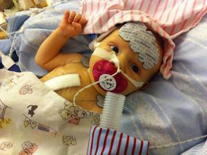 Första åren i Vilyas liv var fulla av dramatik. Den här bilden är tagen två dagar efter hennes första hjärtoperation.