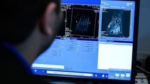 Magnetkameror används för att bedöma om asylsökande unga med oklar ålder är barn eller vuxna.