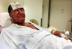 Anders Olsson efter brandolyckan. Hans sår har läkt, men har har lite känningar kvar i armarna.