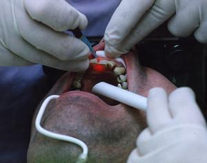Smittan har hindrat många från att få en effektiv tandvård. Tandhälsoförbundet befarar att många äldre får stora bekymmer med sina tänder.