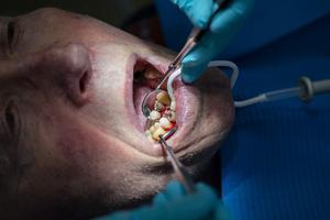Patienten betalar en stor del av kostnaden för sin tandvård.Foto: Tore Meek/TT