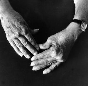 Söndervärkta. Trots att de orsakar stort lidande och försämrar arbetsförmågan avsevärt, är smärt- och symtomdignoser lågstatusdiagnoser inom den medicinska professionen, till stor del därför att de främst drabbar kvinnor, skriver debattörerna. foto: scanpix