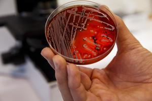 Antibiotikaresistenta bakterier är ett växande problem i världen. Bilden visar en odling av antibiotikaresistenta MRSA-bakterier.