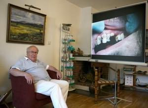 Tandläkaren Bo Cederblom är orolig över hur mycket narkotika som florerar i Norrtälje kommun just nu. Tänderna på bilden tillhör en tidigare fånge på Norrtäljeanstalten som Bo Cederblom uppskattar hade rökt cannabis i 4-5 år.