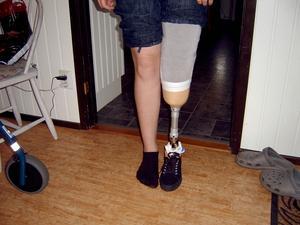 Efter operationen i Uppsala fick 13-åriga Linn prova ut en protes och lära sig gå igen. (Foto: Privat)