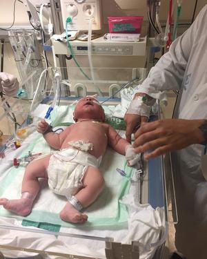När Ebbe föddes kunde han inte andas och led därför av syrebrist. Bild: Privat