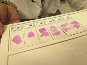 Varje år granskas cirka 70 000 sådana här objektsglas vid patologavdelningen i Gävle. Allt oftare sker hanteringen digitalt.