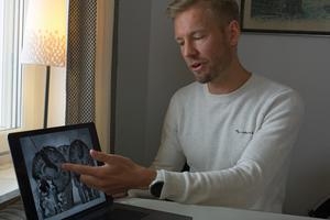 """Anders Södergård visar hur hans hjärna ser ut idag. """"Biten som opererades bort ur hjärnan är ungefär lika stor som en myntrulle med femkronor.  Det svarta är hålrum som är fyllt med vätska"""""""