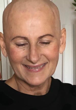 När Carina började tappa håret, rakade hon helt enkelt av det.