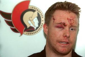 Andreas Dackell för 20 år sedan efter att ha blivit manglad av Eric Lindros i NHL. Arkivbild: TT