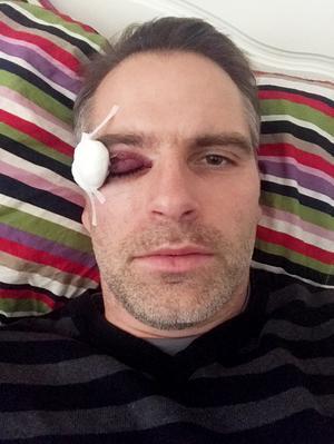 Andreas Westh dagen efter smällen mot ögat.