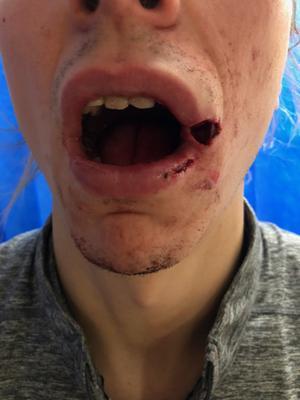 Smällen tog hårt på Granberg. Totalt fick han tre frakturer i käke och mun.
