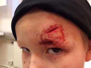 Milian Stolpe Rydstrand på akuten innan skadan i pannan syddes. Bild: Linus Stolpe