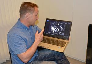 Christer Abrahamsson pekar på sin hjärnskada, som syns tydligt på röntgenbilden som ett vitt område i främre delen av hjärnan till vänster. Trots att det syns så tydligt säger han att försäkringsläkaren inte hittar några