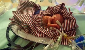 Hugo föddes redan efter 22 veckor, då vägde han 532 gram och var 30 centimeter lång.Foto: Per Runesson