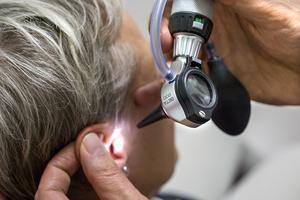 Öroninflammation behandlas alltmer sällan  med antibiotika. Patienterna blir friska ändå. Foto: Claudio Bresciani/TT