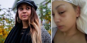 Vänster: Vi träffar Chasmin Marquez Karlsson i oktober 2018. På bilden till höger har hon precis opererats för första gången, 2009.