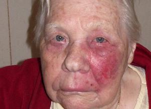 Foto: Privat. 93-åriga Ediths bältros missades – i stället skickades hon hem med penicillin.
