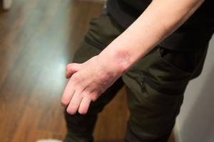 """David Wikbloms vänsterhand är invalidiserad och dessutom tvingades han amputera bort lillfingret. """"Om de prioriterat mig bättre hade jag säkert haft lillfingret kvar och kunnat använda båda händerna"""", säger han."""