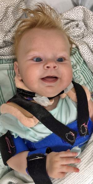 Magda opererades när hon var fem månader. Foto: Privat