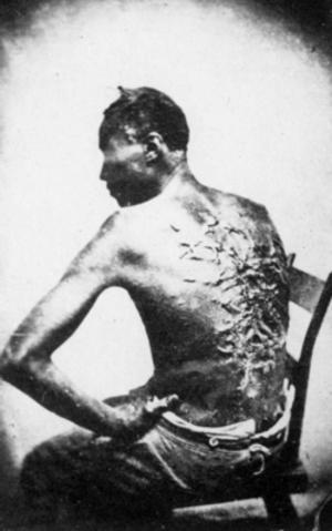 Exempel på behandlingen av slavar i USA: ryggen är mycket ärrad av pisksnärtar. Fotograf: okänd.