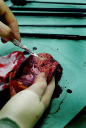 Den sjuka njuren är urtagen och kontrolleras av urologen Per Lindblad. De ljusa områdena är angripna av cancer.