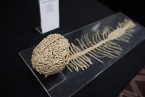 En äkta människohjärna med tillhörande skelett. Ett av många utställningsobjekt i Real human bodies som just nu pågår i Örebro.