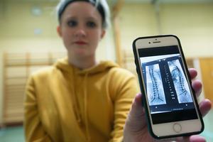 På mobilen finns ett foto på röntgenbilder av de stålstag som finns i Josefinas rygg och som kommer att få sitta kvar.