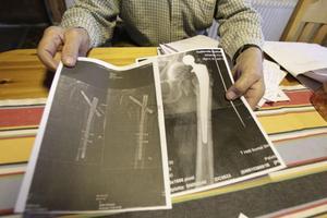 Johanne Krogh satte ihop Arne Ullmarks ben med skruvar som stack ut och skavde mot muskeln.–Det är skillnad med den hela höftledsprotes som jag fått nu. Värken försvann direkt, säger Arne och jämför de båda röntgenbilderna.