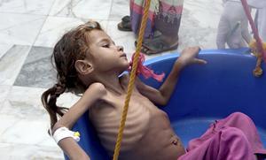 Hungern i världen fortsätter attöka – antalet undernärda uppgår till 821 miljoner, enligt FN:s matorgan, FAO. Foto: Hammadi Issa/AP Photo