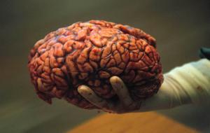 Hjärnan påverkas av alkoholintag stod i i bildtexten till denna arkivbild. Ändå blir vi klokare med åren... Foto: ROLF HAMILTON/Arkiv