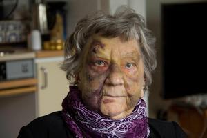 Den ursprungliga bilden på en blåslagen Karin Forslund från 2014. Hon hade då ramlat på ett servicehem i Söderhamn.