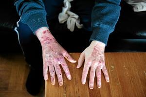 Bild: Jennie JohanssonAdrian Johanńsson brände även sina händer vid den kraftiga strömsmällen.