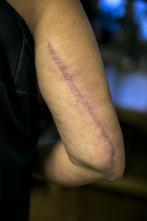 Åtta ärr är de synbara spåren efter olyckan på Angelicas kropp. Armens trasiga benbitar pusslades ihop och fixerades med en metallplatta och sju skruvar.