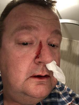 Ica-handlaren Anders Waller blev slagen med en knuten näve rakt i ansiktet. Slaget tog över glasögonen och skadade hans näsa.