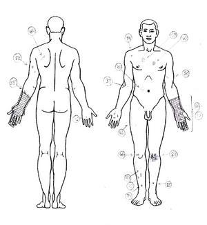 På kroppen, benen, armarna och händerna uppvisade mannen omkring 45 skador, bland annat en handfraktur, sår efter kolsyrepistolen och kraftigt missfärgad hud på grund av inre blödningar.