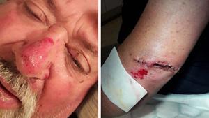 Rolands fru dokumenterade hans skador på akuten. Men det stora djupa såret på armbågen klarade hon inte av att fotografera förrän det var rengjort och sytt. Trots hjälm med visir och fick också näsan och ansiktet sina smällar, liksom stora delar av kroppen.