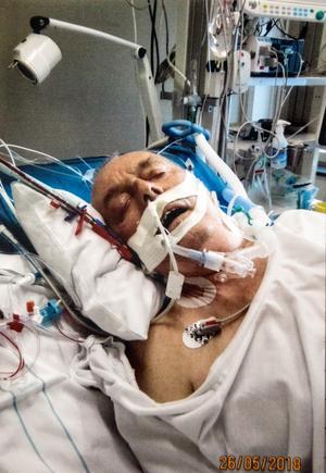 Kopplad till slangar under dygnen på Karolinska sjukhuset. Tejpen håller fast sonden som leder näring till matsäcken. Foto: Privat