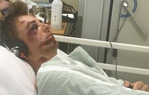 Filip Paalanen blev kvar på sjukhuset i Gävle i fyra dagar. De första veckorna hemma kunde han bara ligga i soffan, med gardinerna fördragna eftersom han var så känslig för lju
